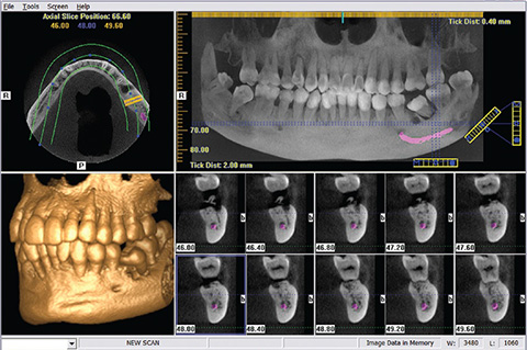歯科用CT撮影装置